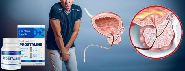Citește comentarii pe forum despre Prostaline.